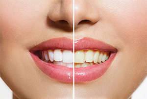 Phoenix cosmetic dentist | teeth whitening, whiter teeth| Dr. Jakobsen